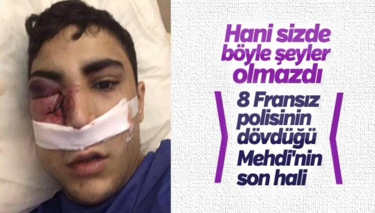 8 polisin saldırdığı genç bir gözünü kaybetti