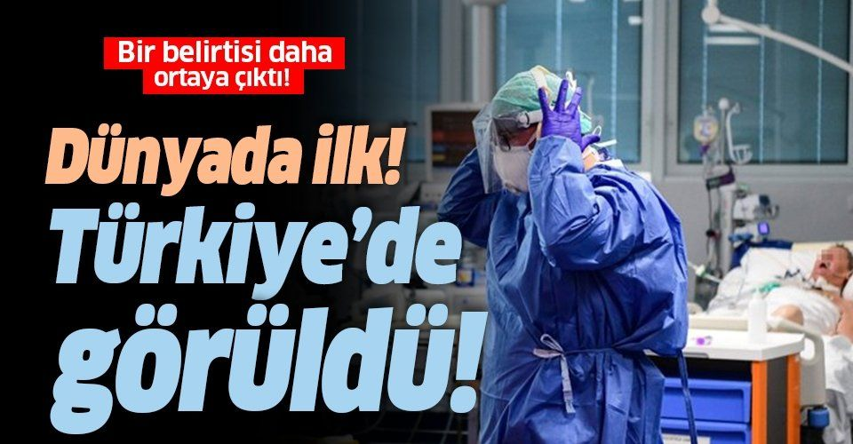 Koronavirüsün bir belirtisi daha ortaya çıktı! Dünyada ilk kez Türkiye'de görüldü!