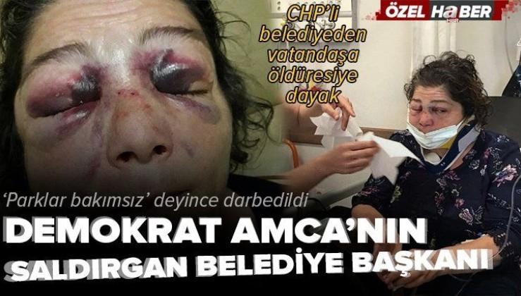 CHP'li Eynesil Belediye Başkanı Ahmet Latif Karadeniz'in adamları 'parklar bakımsız' diyen kadını hastanelik etti!