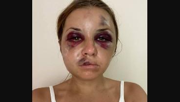 """""""Прокинулася в 6 ранку від болю"""" - Побита в потязі жінка повідомила, що самопочуття погіршилося (відео)"""